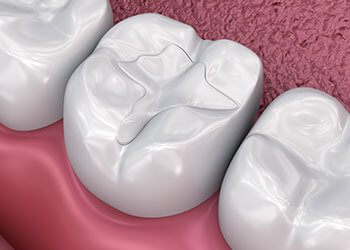 How-Long-Do-Tooth-Fillings-Last